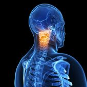 3d rendered illustration of a painful neck