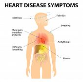 ������, ������: Heart Disease Symptoms