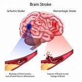 Stroke Types Poster, Banner. Vector Medical Illustration. White Background, Anatomy Image Of Damaged poster