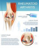 Infographic Treatment Method Rheumatoid Arthritis. 3d Banner Vector Illustration Anatomy Human Knee  poster