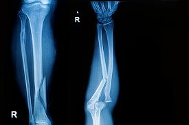picture of fracture  - x - JPG