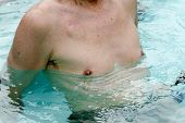 stock photo of pacemaker  - Senior male cardiac patient working out in a swimming pool several weeks after having a pacemaker implanted - JPG