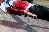 stock photo of accident victim  - Dead bleeding man after car accident horizontal - JPG