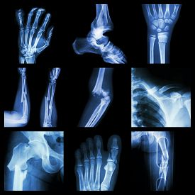 picture of fracture  - Collection of bone fracture  - JPG