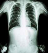 X-ray Chest ( Akimbo Position ) ( Front View )