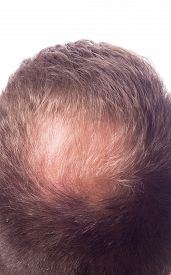 pic of male pattern baldness  - Bald men  - JPG