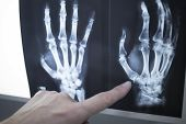 Medical Doctor Pointing At Radiograph X-ray Image