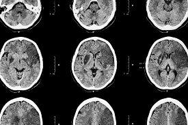 stock photo of frontal lobe  - Ischemic stroke  - JPG