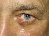 Man with a medical condition called a sty in the eye lid