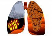 picture of tuberculosis  - tuberculosis - JPG