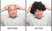 Hairless man and man with beautiful hair. Compare of before and after use your new hair shampoo.