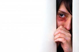 image of bruises  - Beaten bruised woman looking scared from behind the door - JPG