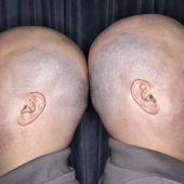 Close up of Caucasian bald identical twin men standing back to back.