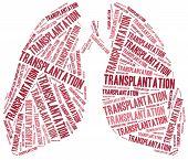 Lung Transplantation. Word Cloud Illustration.