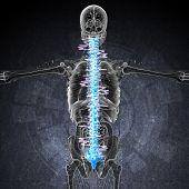 3D Render Medical Illustration Of The Painful Back