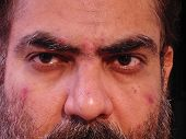 picture of face-fungus  - closeup of an indian man showing skin malady - JPG