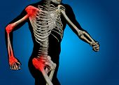 pic of hurted  - Conceptual 3D human man anatomy or health design - JPG