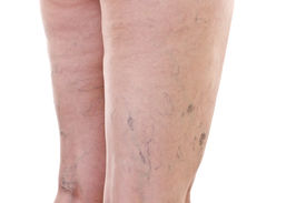 picture of varicose  - Legs with a lot of varicose veins - JPG