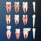 Realistic Illustration Set Teeth Different Problem. Vector Image 3d Visualization Dental Problem Too poster