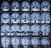 MRI Brain Scan Image