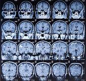 MRI Brain Scan Image