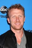 LOS ANGELES - AUG 4:  Kevin McKidd arrives at the ABC Summer 2013 TCA Party at the Beverly Hilton Ho