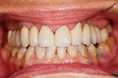 Porcelain Teeth In Human Mouth