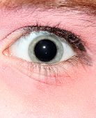 Dilated