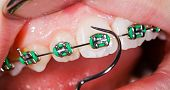 pic of overbite  - Close up photo of teeth with orthodontic braces - JPG