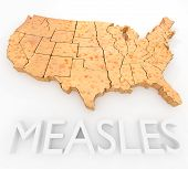 Measles Return To The US