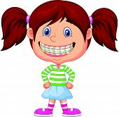 stock photo of overbite  - Vector illustration of Little girl cartoon with brackets - JPG