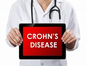 Doctor Showing Tablet With Crohn's Disease Text.