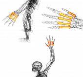 3D Render Medical Illustration Of The Metacarpal Bone