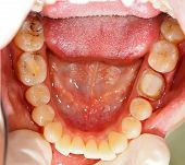 Denture Under Treatment