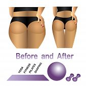 picture of cellulite  - Woman - JPG