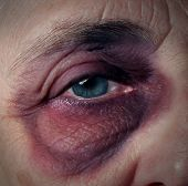 stock photo of bruises  - Senior abuse or elder mistreatment as an old person with a black eye bruised and injured from domestic violence on older aging adults fromn a retirement home or caretaker who has broken the trust as a legal health care concept - JPG