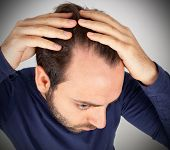 pic of scalping  - Caucasian young man controls hair loss on white background - JPG