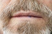 image of mucosa  - Hemangioma on the lip of an elderly man - JPG
