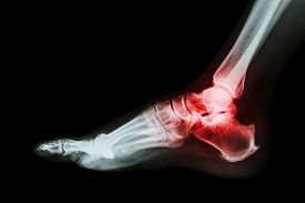 picture of gout  - Arthritis at ankle joint  - JPG