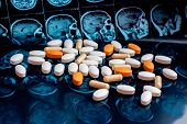 Different Pharmaceutical Medicine Pills On Magnetic Brain Resonance Scan Mri Background. Pharmacy Th poster